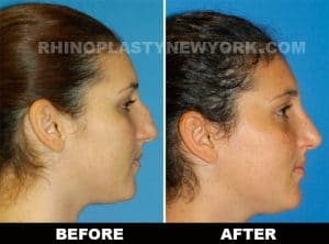 microrhinoplasty before after photo