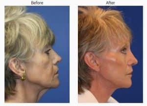 necklift plastic surgery in new york