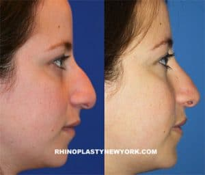before after nose reduction nyc