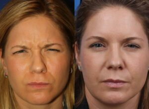 Image showing a woman with wrinkles on her face in before image, that disappeared in the after photo once she had botox teatment, New York, NY