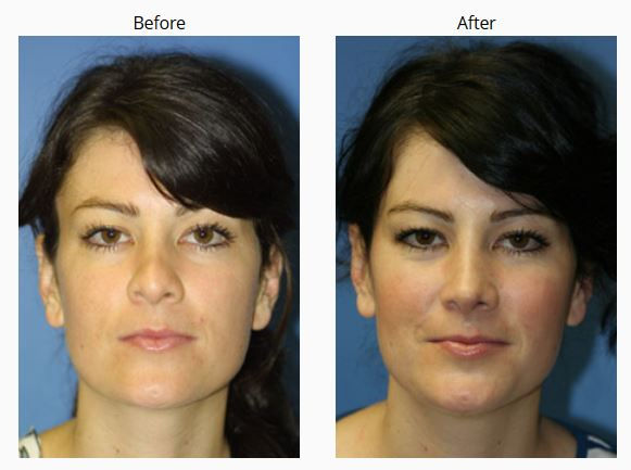 Before and After photos of a woman that had a revision rhinoplasty, New York, NY