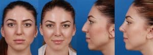 image showing female patient before and after her rhinoplasty surgery, resulting in an improved nose line.