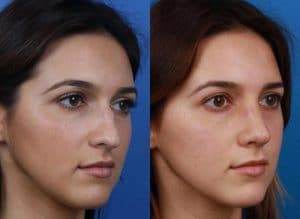 Before and After Image of New York Rhinoplasty. Performed by Philip Miller, MD, FACS of Manhattan