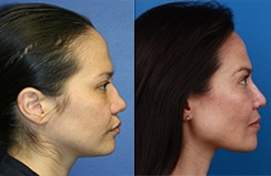 Image showing a woman with an uneven nose, which in the after image was aligned and straightened, improving her appearance, New York, NY