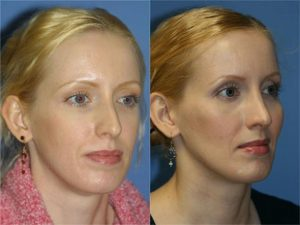 Image of a female patient after re-sculpting cheekbone with Voluma and Sculptra treatments, New York, NY