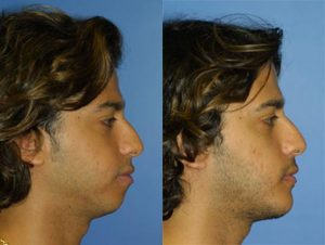 Before and After images of a male patient with an improved jawline after the procedure