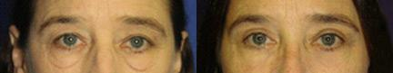patient-10895-blepharoplasty-eyelid-surgery-before-after