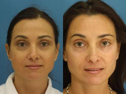 Blepharoplasty before and after in new york