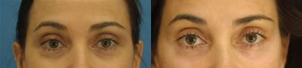 patient-10898-blepharoplasty-eyelid-surgery-before-after-3