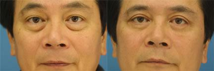 patient-10908-blepharoplasty-eyelid-surgery-before-after-1