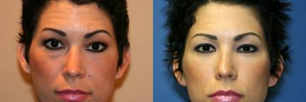 patient-10911-blepharoplasty-eyelid-surgery-before-after-2