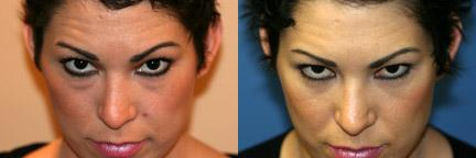 10911-blepharoplasty-eyelid-surgery-before-after-3