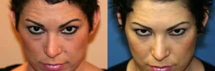 10911-blepharoplasty-eyelid-surgery-before-after-3