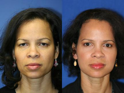 Blepharoplasty Patient 10916 Portrait