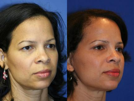 Blepharoplasty Patient 10916 Quarter View