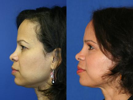 Blepharoplasty Patient 10916 Left Facing