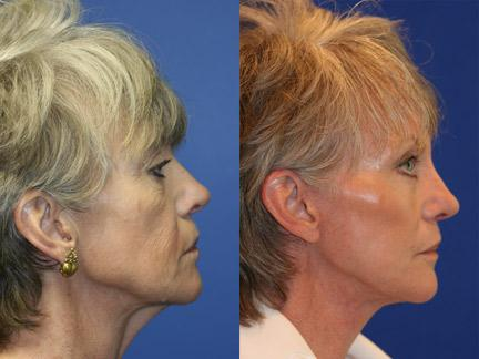 Blepharoplasty Right Facing