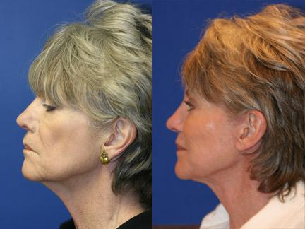 Blepharoplasty Anti-Aging Treatment