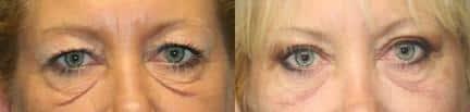 Blepharoplasty Under Eye Bags