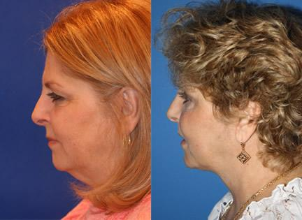 Lower Upper Blepharoplasty Surgery
