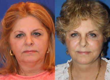 Upper Lower Blepharoplasty Surgery