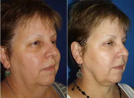 Upper Lower Blepharoplasty Before After