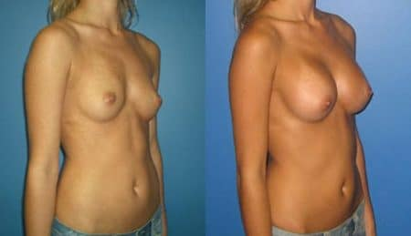 patient-10956-breast-augmentation-before-after-1