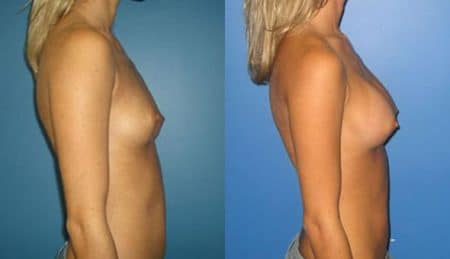 patient-10956-breast-augmentation-before-after-2