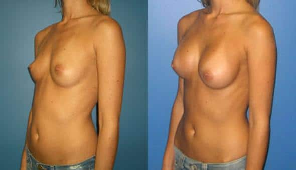 patient-10956-breast-augmentation-before-after-3
