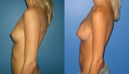 patient-10956-breast-augmentation-before-after-4