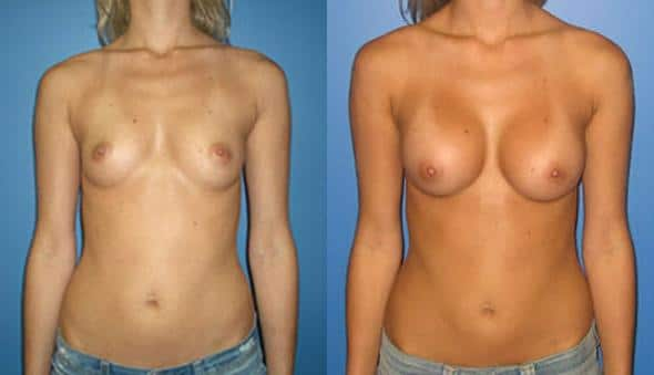 patient-10956-breast-augmentation-before-after