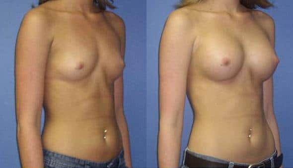 patient-10967-breast-augmentation-before-after-1