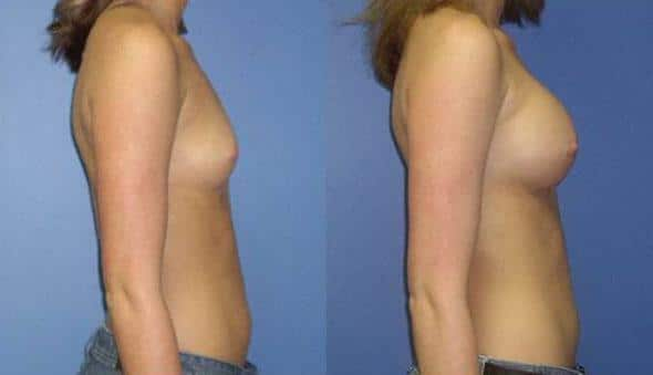 patient-10967-breast-augmentation-before-after-2