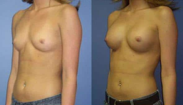 patient-10967-breast-augmentation-before-after-3