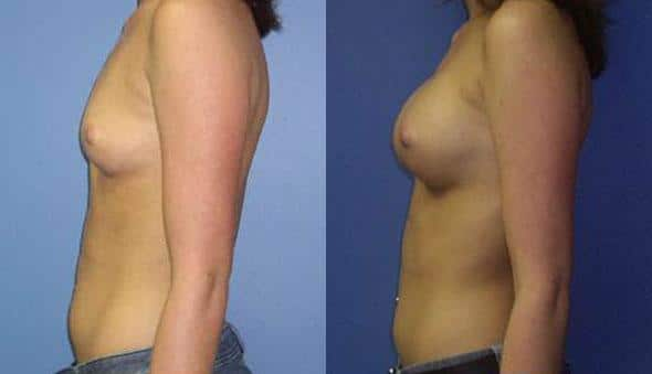 patient-10967-breast-augmentation-before-after-4
