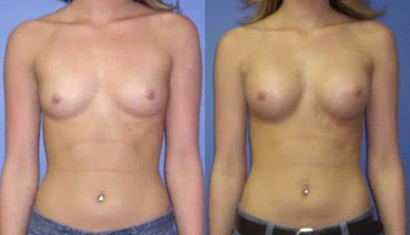 patient-10967-breast-augmentation-before-after
