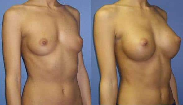 patient-10978-breast-augmentation-before-after-1