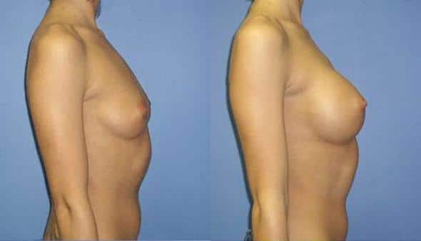 patient-10978-breast-augmentation-before-after-2