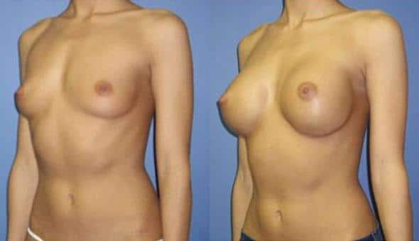 patient-10978-breast-augmentation-before-after-3