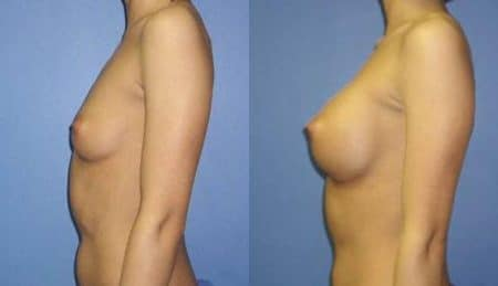 patient-10978-breast-augmentation-before-after-4
