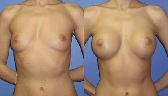 patient-10978-breast-augmentation-before-after