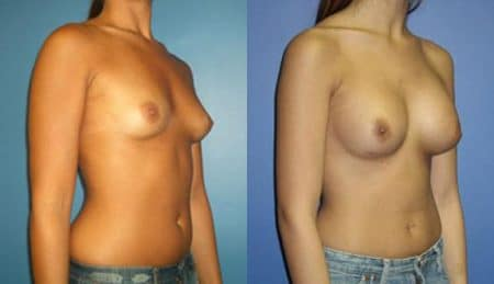 patient-10989-breast-augmentation-before-after-1