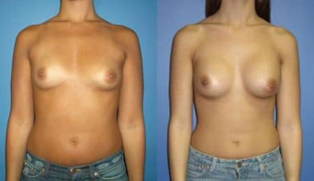 patient-10989-breast-augmentation-before-after