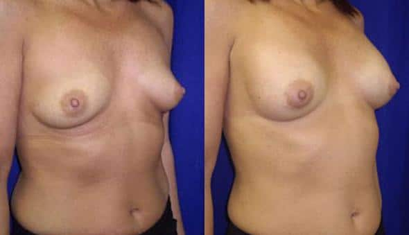 patient-10998-breast-augmentation-before-after-1