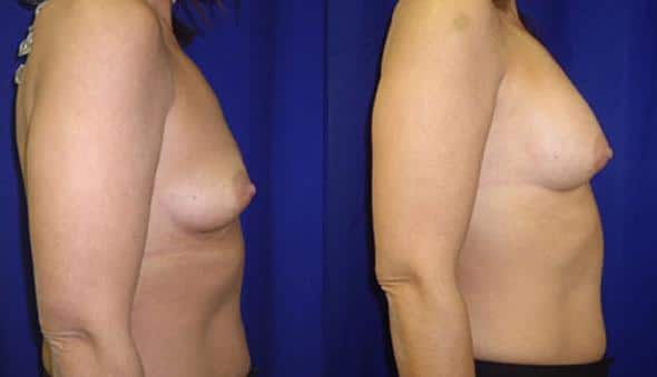 patient-10998-breast-augmentation-before-after-2