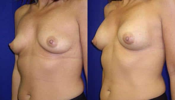 patient-10998-breast-augmentation-before-after-3
