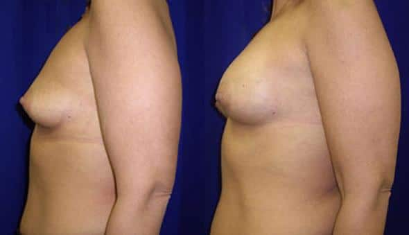 patient-10998-breast-augmentation-before-after-4