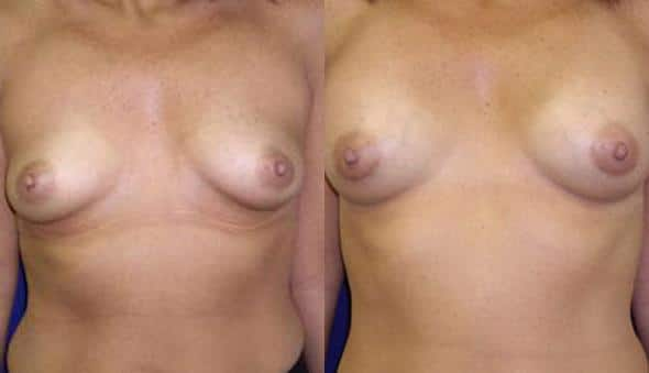 patient-10998-breast-augmentation-before-after