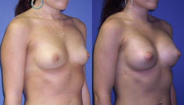 patient-11009-breast-augmentation-before-after-1
