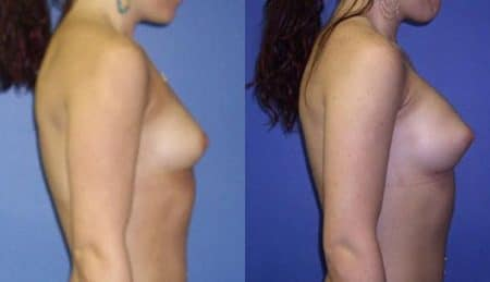 patient-11009-breast-augmentation-before-after-2